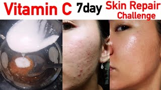 Vitamin C face pack for Fair Skin | Glowing Skin Remedy | JSuper Kaur