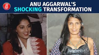 Remember Anu Aggarwal From Aashiqui? You'll Be SHOCKED To See Her Transformation | Before & After