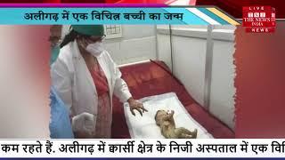 Uttar Pradesh // Aligarh में एक विचित्र बच्ची का जन्म, मछली जैसी है स्किन