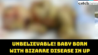 Unbelievable! Baby Born With Bizarre Disease In UP's Hospital | Catch News