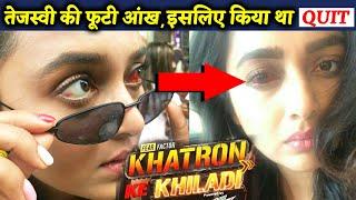 Khatron Ke Khiladi 10   Tejasswi Prakash SHARES Her Eye Injury Photo, Here's Why She QUIT The Show