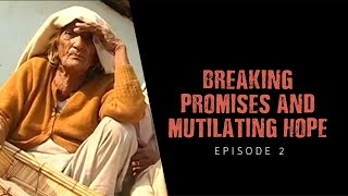 Breaking promises and mutilating hope   Episode 2