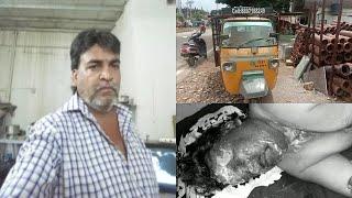 Is Aadmi Par Pheka Gaya Tezaab   At Errakunta Hyderabad  @Sach News