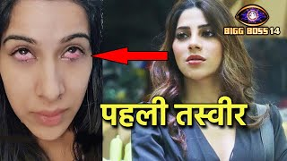 Bigg Boss 14: Sara Gurpal's Injured Eyes Photo, Nikki Tamboli Ke Acrylic Nails Se Hui Thi Injury