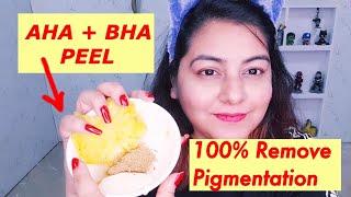 AHA BHA Peel to Remove PIGMENTATION, Dark Spots, Sun Tan | JSuper Kaur