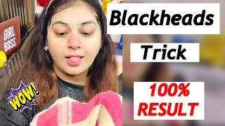 How I Remove BLACKHEADS at home | Backheads Tricks | JSuper Kaur