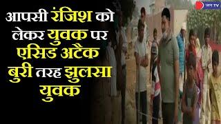 Agra News | आपसी रंजिश को लेकर युवक पर फेंका तेजाब, जाँच में जुटी पुलिस बुरी तरह झुलसा युवक