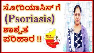 Home Remedies for Psoriasis in Kannada | Psoriasis treatment | Kannada Sanjeevani