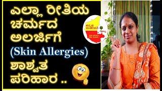ಎಲ್ಲಾ ರೀತಿಯ ಚರ್ಮದ ಅಲರ್ಜಿಗೆ ಸುಲಭ ಪರಿಹಾರ | Skin Allergies | Skin Problems | Kannada Sanjeevani