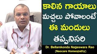 కాలిన గాయాలు మచ్చలు పోవాలంటే ఈ మందులు తప్పనిసరి || Doctor B Nageswara Rao
