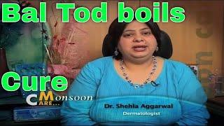 Bal Tod (Boils) cure treatment tips by dermatologist बाल तोड़ का इलाज डॉक्टर की सलाह