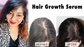 Best Serum for Hair Growth! | Mamaearth new Launch | JSuper Kaur