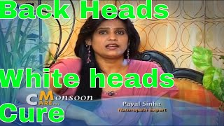 Skin Care How to cure black heads white heads tips by Payal Sinha ब्लैक हेड्स को कैसे खत्म करें