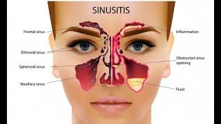 Ayurvedic treatment of Sinusitis Sinus https://beingpostiv.com/
