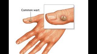 How to treat warts tips by dermatologist मास्सा उसका इलाज   https://beingpostiv.com/