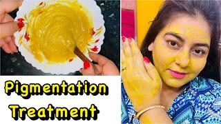 Pigmentation & Tan Removal at Home | JSuper Kaur