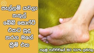 Apply This Miracle Cream To Get Baby Soft Feet And Lighten