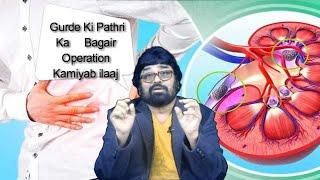 Gurde Ki Pathri ( Kidney Stone ) Ka Bagair Operation Kamiyab ilaaj | By Dr. Askary |