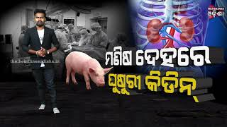 Pig kidney transplantation was successful in the human body