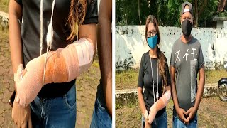 Shocking | Women Attacked by Rottweiler dog in Calangute