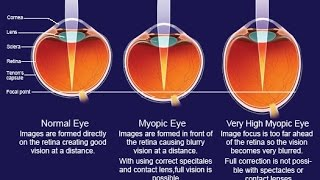 Half the world's population to be myopic by 2050 News Video