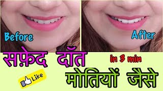 How to Whiten Teeth at home | Proof in LIVE video - 100% Effective | JSuper Kaur