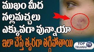 ముఖం మీద బ్లాక్ డాట్స్ ఉన్నాయా అయితే ఇలాచేస్తే తొందరగాతగ్గిపోతాయి|How to Remove Black Spots on Face