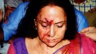 Dream Girl Hema Malini Got Injured in Road Accident in Rajasthan