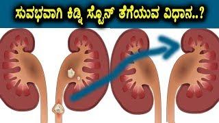 Very easy steps to remove kidney stone or avoid | Health News | Kannada Health videos | Kannada TV