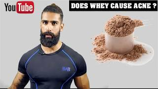 Does WHEY PROTEIN give PIMPLES/ACNE (in Hindi) । Whey Protein Side Effects