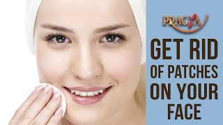 Get Rid Of Patches On Your Face | Payal Sinha