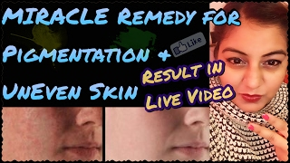Home Remedy for Pigmentation | How to Remove Black Spots and Dark Spots on Face
