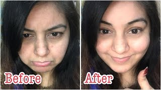 मलाई जैसी मुलायम निखरी त्वचा | Facial at home - Coconut Milky White Fair skin - Demo in Live Video