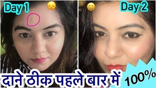 DIY Acne Treatment in 1 day | How to Remove Pimples Overnight | 100% Natural | JSuper Kaur