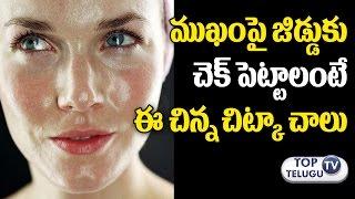 ముఖంపై జిడ్డుకు చెక్ పెట్టండి | How to Get Rid Oily Skin on Face | Home Remedies | Health Tips