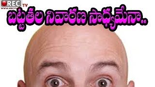 How to stop hair falls naturally II  make new hairs grow on a head II Best Home Made Beauty Tips