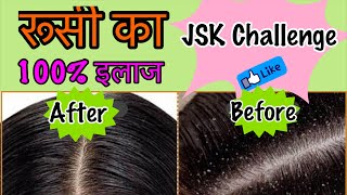 How to remove dandruff naturally in 1 Wash | Home remedy to Cure Dandruff & Hairfall | Jsuper Kaur
