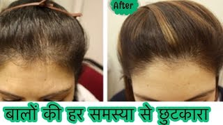 DIY Hair Growth Oil - Stop Hair Fall, Hair Loss | How to grow Long Thick Hair Naturally