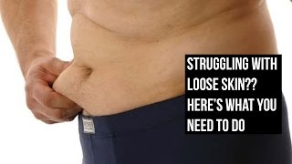 Get rid of Loose Skin After Weight Loss - Only Truth No B.S.