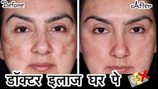 Remove Dark Spots, Pigmentation - Doctor Treatment at Home  | How To get Clear Skin | JSuper Kaur