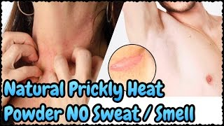 DIY NATURAL Prickly Heat Powder- NO Dark UnderArms Neck skin | BEST Prickly Heat Home Remedy