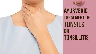 Ayurvedic Treatment Of Tonsils Or Tonsillitis | Dr. Vibha Sharma