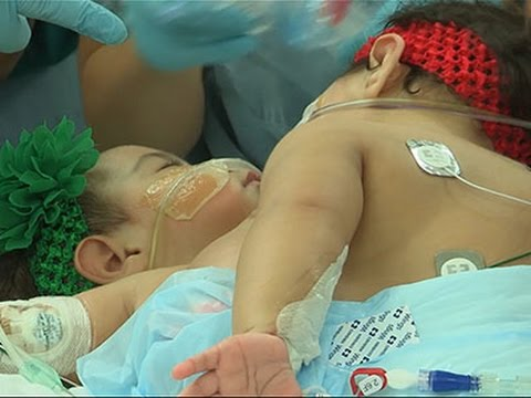 Conjoined Twins Separated After 26 Hour Surgery News Video