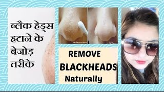 How to Remove BLACKHEADS / WHITEHEADS in 1 APPLICATION | 100% works | NATURAL remedy | JSuper Kaur