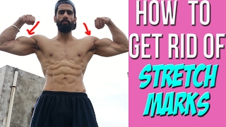 Can you remove Gym STRETCH MARKS (in Hindi)| How to prevent White Marks on Chest ?