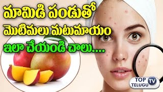 మామిడి పండుతో మొటిమలు మాయం | Remove Pimples with Mango juice | How to Remove Pimples | Health Tips