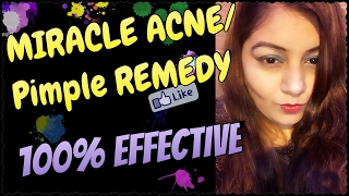 How To Remove Pimples/Acne | Remove Acne Marks | Treatment at Home & Instant Result | Jsuper Kaur