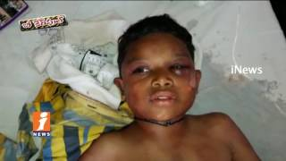 9 Years Old boy Tortured With Cigarette Burns In Prakasam District | Be Careful | iNews