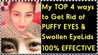 How to Get Rid of PUFFY EYES, SWOLLEN EYELIDS, DARK CIRCLES & EYE BAGS - with DEMO | 100% RESULT