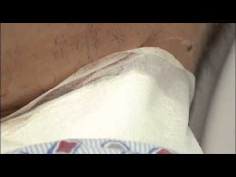 PA Tree Trimmer Survives Chainsaw in Neck News Video